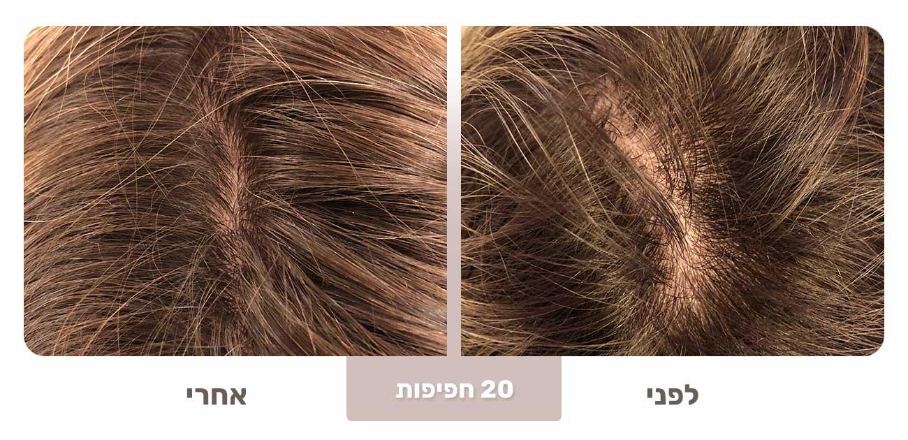 שיער דליל שיפור