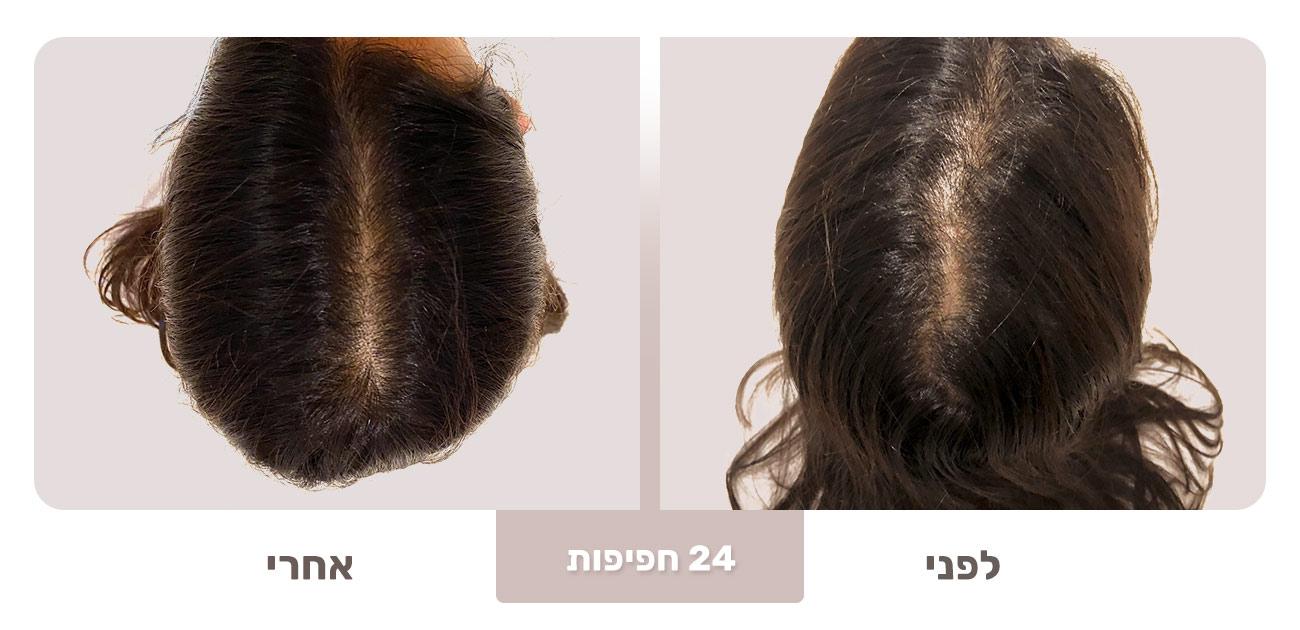 שיער דליל אחרי 24 חפיפות עם בורן