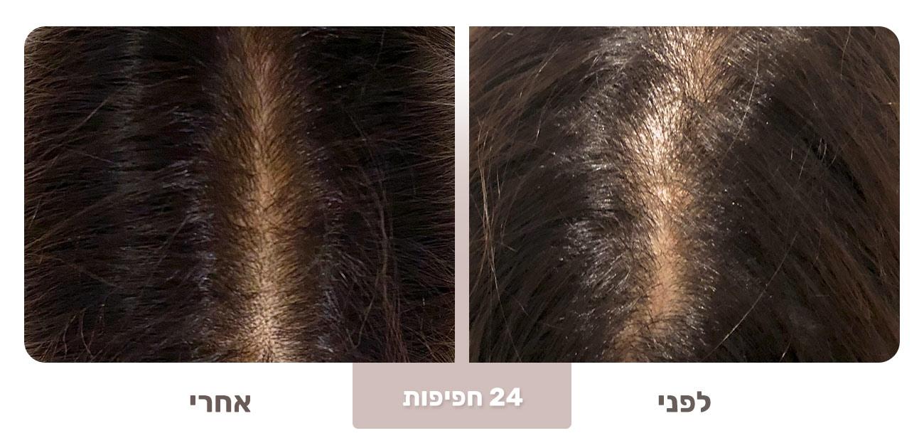 שיער דליל - שיפור לאחר 24 חפיפות, Born