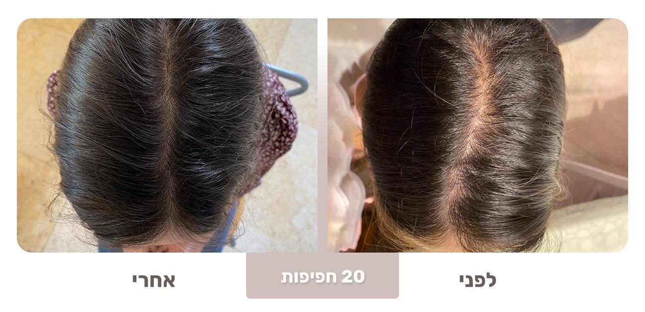 שיער דליל - שיפור לאחר 20 חפיפות עם בורן ביוטי