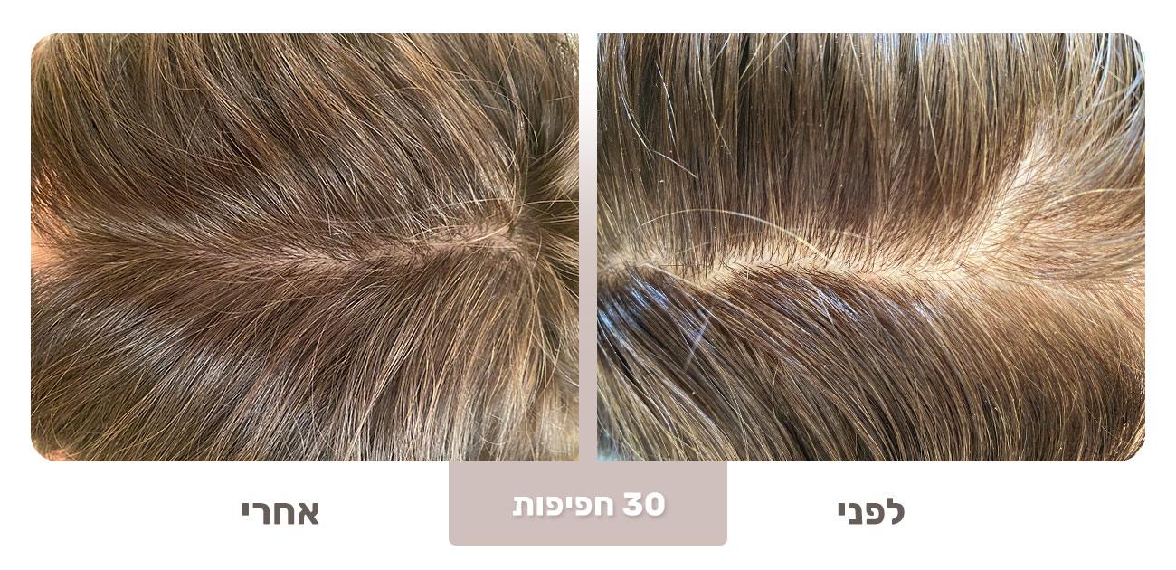 שיער דליל - שיפור לאחר כ 30 חפיפות עם Born
