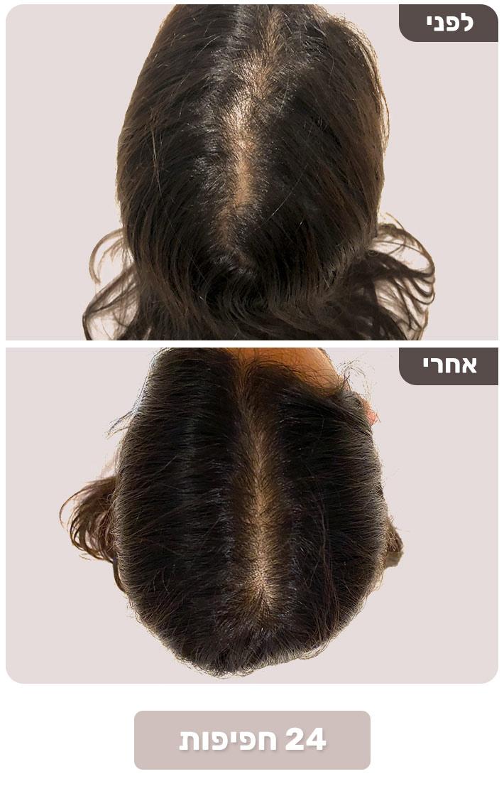 שיער דליל - שיפור לאחר 24 חפיפות עם Born