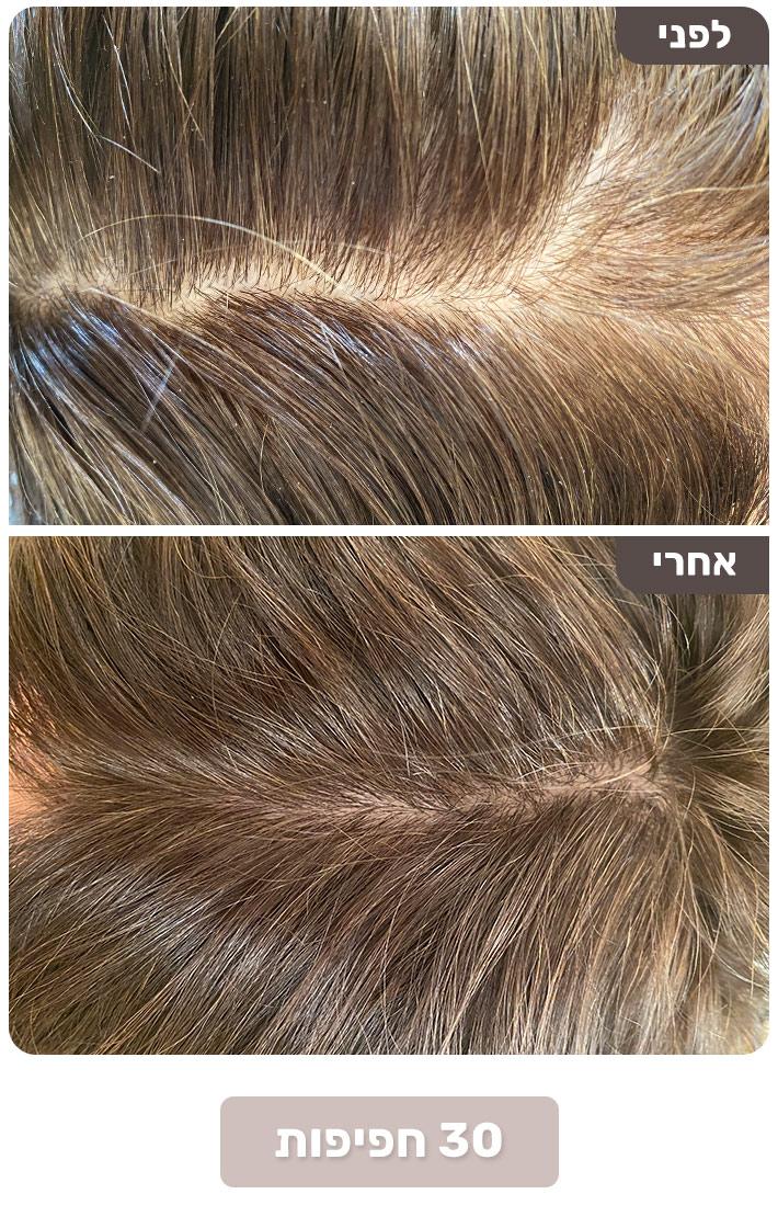 שיער דליל - שיפור, כ 30 חפיפות עם Born